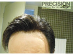 Real Precision Hair Wearer (INFINITE 1B, 10% 22 Hightlights)